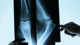 Doctors Study Arm,leg & Palm Joints X-ray Film For Analysis stock footage