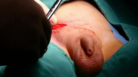 surgery operation, general view in hospital Footage