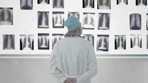 Male Doctor Looking At X-Ray stock footage