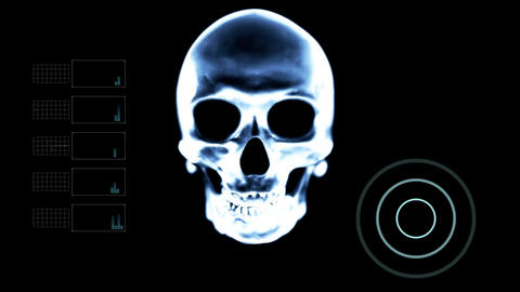 Scanning Skull Under X- Ray with other Elements Footage