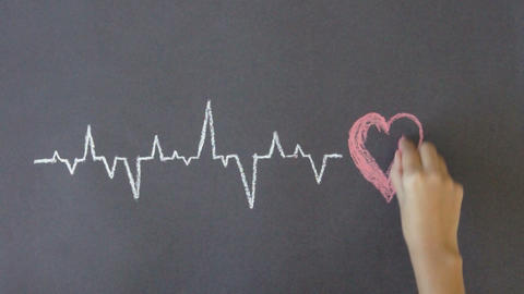 Heartbeat Diagram stock footage
