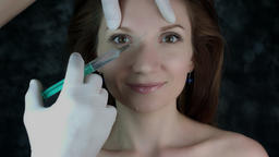 4k Shot Of A Woman Posing - Doctor Injecting Botox In Forehead stock footage
