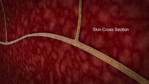 The shingles virus causes a painful skin rash on body Animation