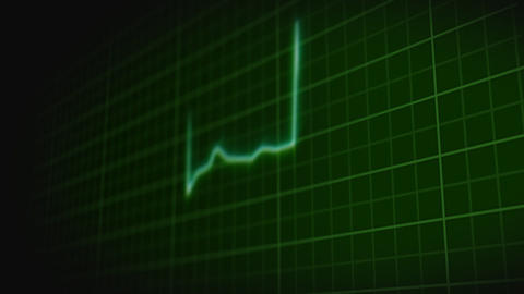 Heartbeat stock footage