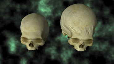 Hydrocephalic Human Skull Animation, top view on B Animation