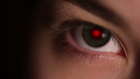 Red Pupil of the Eye Footage