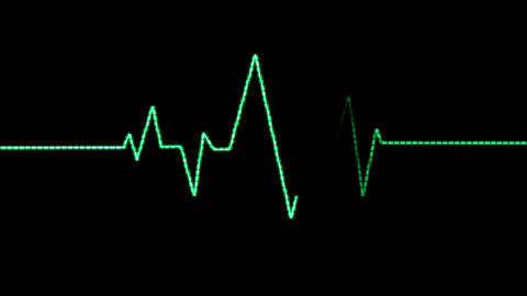 Heart Rate Monitor (25fps) stock footage