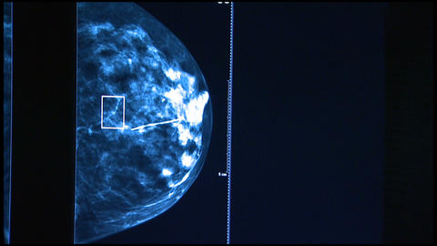 Medical Imaging Checking for Breast Cancer Footage