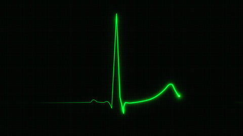 Cardiogram With Grid 60 Bpm stock footage