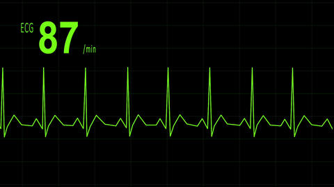 EKG animation heartbeat CG動画素材