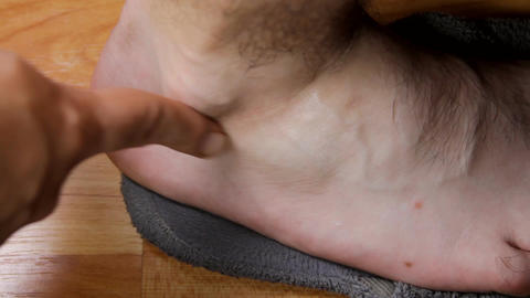Man Applying Cream To His Ankle, Ankle Pain, Treat stock footage