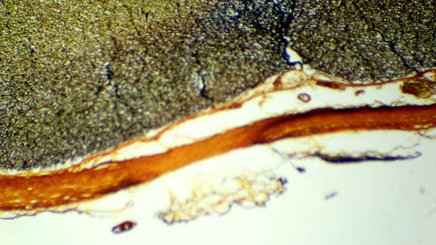 Cross Section Of The Spinal Cord Under Microscopic stock footage