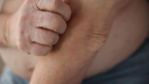 Man Scratching His Elbow stock footage