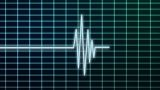EKG Scanner stock footage