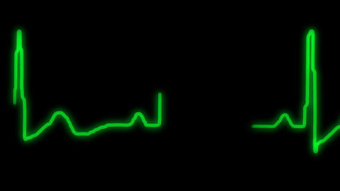 EKG Animation With Alpha Channel stock footage