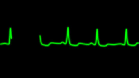 EKG Animation with Alpha Channel Animation