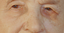 Elderly Womans Face With Tired Expression stock footage