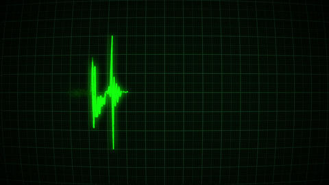 Heartbeat On The Green Monitor stock footage
