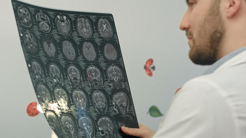 Senior Man Doctor Examines MRI Image In Hospital stock footage