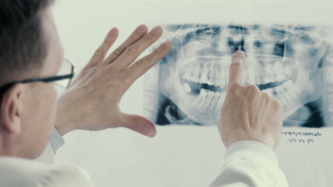 Male Doctor Analyzing X-ray In Clinic stock footage